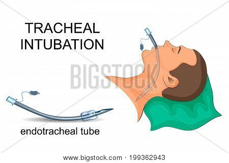 vector illustration of tracheal intubation. artificial ventilation of the lungs