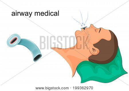 vector illustration of medical duct in the mouth