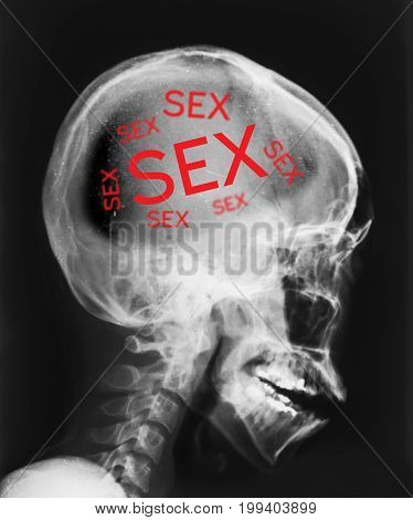 X-ray of head isolated with word sex inside.