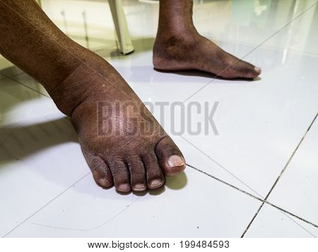 The feet of people with diabetes dull and swollen. Due to the toxicity of diabetes.
