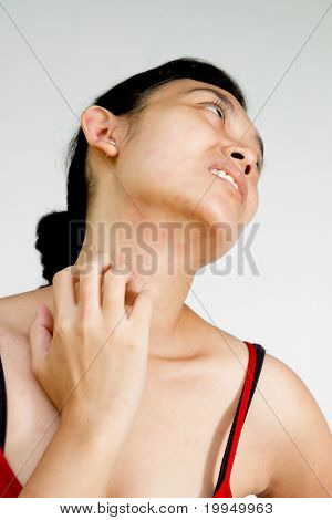 Woman Neck And Face With Skin Rash