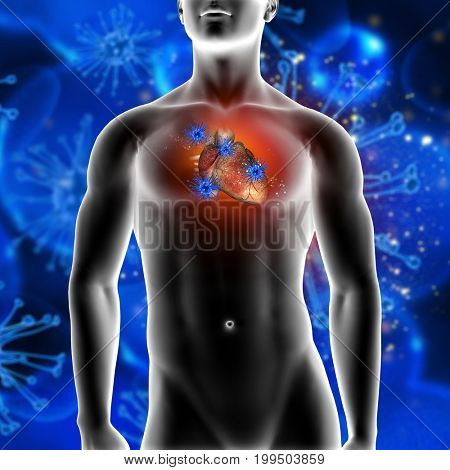 3D render of a medical background showing virus cells attacking a heart in a male figure