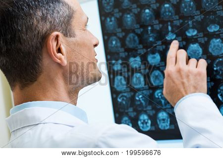 Carefully studying. The close up of a handsome middle-aged male doctor looking through the results of computer tomography, pointing at them with his finger