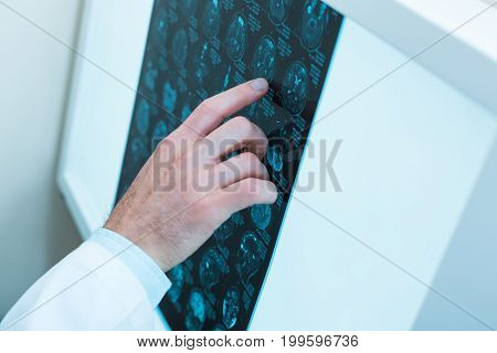 Precise results. The close up of a neat hand of a doctor pointing at the results of computer tomography while analyzing them