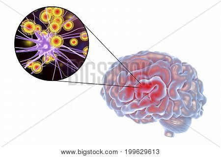 Viral encephalitis, 3D illustration showing brain and close-up view of viruses and neurons