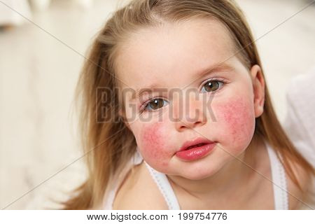 Portrait of little girl with diathesis symptoms on cheeks in light room