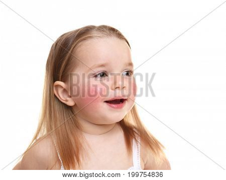 Portrait of little girl with diathesis symptoms on cheeks, against white background