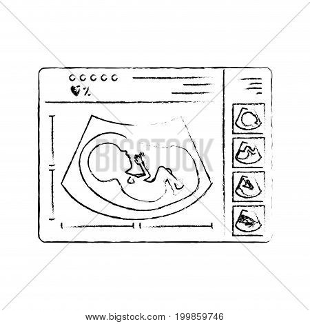 monochrome blurred silhouette of monitoring ultrasound of baby in device vector illustration