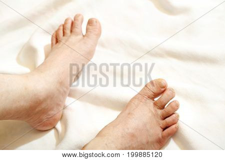 Mature man barefoot with dry skin and nails side view isolated on white background
