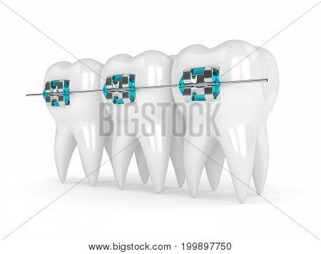 3D Render Of Teeth With Braces