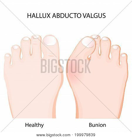 hallux abducto valgus is a deformity of the joint connecting the big toe to the foot. healthy joint and bunion. Comparison