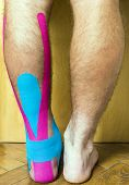 Legs of a man looking at the calves and achilles tendon. The foot with a wound covered with tape used in elastic therapeutic tape (Kinesio Taping). poster