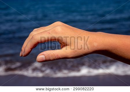 Female Hand With Red Sunburn Skin On Blue Sea Background. Sun Burned Skin Peeling. Seaside Threat. D
