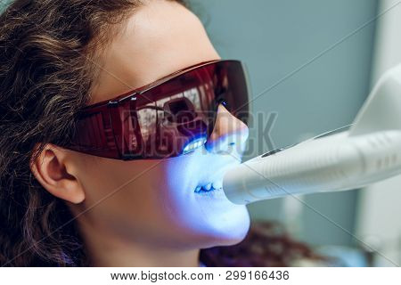 Laser Bleaching Teeth At Dantist Room. Teeth Whitening For Woman. Bleaching Of The Teeth At Dentist