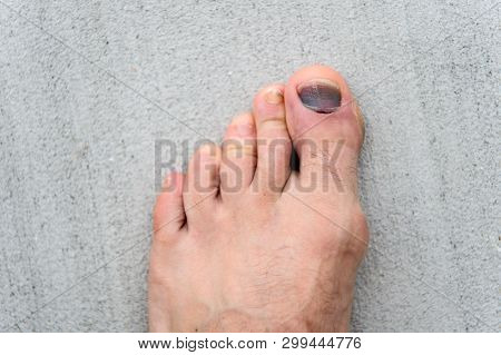Nail hematoma. Take care of your feet. Pedicure and podiatry. Treatment of bruise and fracture. Medicine concept. Trauma foot toes nails. Injury of toe nail. Effects wearing uncomfortable footwear. poster