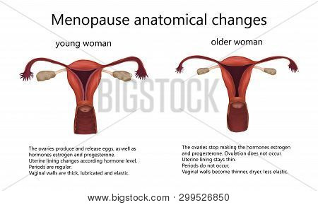 Menopause Anatomical Changes. Comparison Of Female Reproductive System Of Young Woman And Older Woma