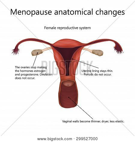 Menopause anatomical changes. Female reproductive system of older woman with explanations. Realistic anatomy vector illustration. poster