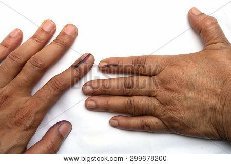 Young Man And Senior Citizen Indian Woman Voted , Exercized Voting Rights And Got Their Index Finger