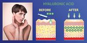 Hyaluronic acid. Skin-care products. The rejuvenation with help of treatment. Cosmetic or dermal fillers. Young female with clean fresh skin. Beautiful woman. face and neck. Lifting by filler concept poster
