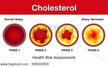 Cholesterol In Artery, Health Risk , Vector Design.