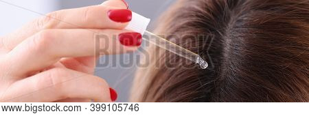Woman Applies Oil Dropper To Hair Roots. Hair Restoration Procedures Concept