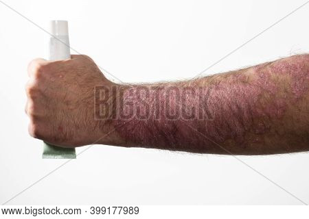 Man With Sick Hand Psoriasis (eczema) And Other Skin Diseases Such As Fungus, Holding In His Hand Oi