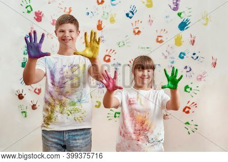 Happy Kids, Disabled Boy And Girl With Down Syndrome Smiling At Camera, Showing Their Hands Painted
