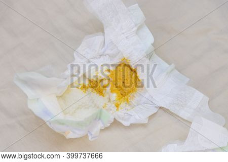 Feces Of A Newborn One Month After Birth In A Diaper.