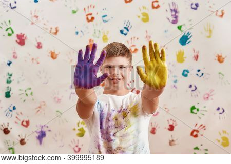 Cheerful Disabled Boy With Down Syndrome Smiling At Camera While Standing With Hands Painted In Colo