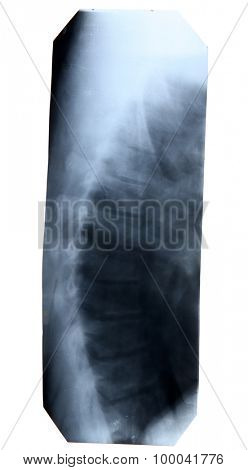 X-Ray image isolated on white