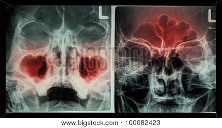 sinusitis at maxillary sinus ( left image ),  frontal sinus ( right image )