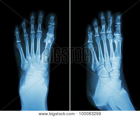 Film X-ray Both Foot ( 2 Position : Front View And Side View )