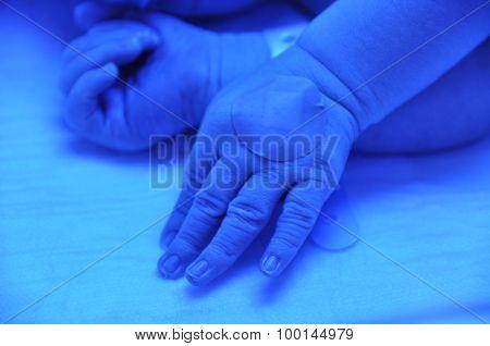 Newborn jaundice