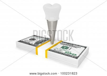 Cost Of Dental Concept. Tooth Implant With Money