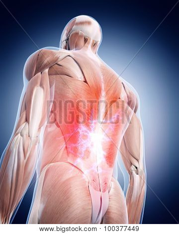 medical 3d illustration of a painful back