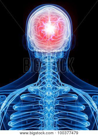 medically accurate illustration - headache