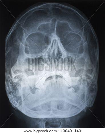 Radio Graphs Skull