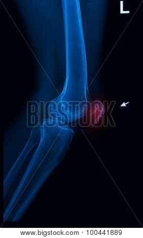 Trauma Knee Joint X-rays Image Vertical