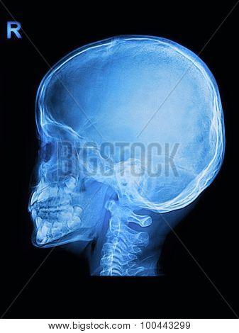 Children Skull X-rays Image