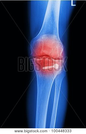 X Ray Image Painful Of Knee Joint