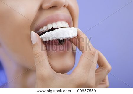 Teeth Whitening - Smiling Girl With Tooth Tray, Close-up