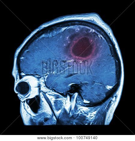 Film Mri Of Brain With Brain Tumor ( Sagittal Plane , Side View , Lateral View ) ( Medical , Health