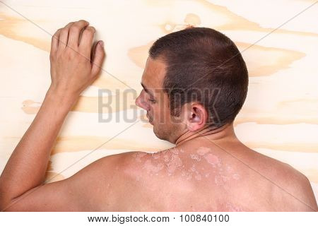 Sunburned Male Back