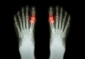 stock photo of gout  - Gout  - JPG