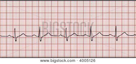 Electronic Cardiogram Illustration