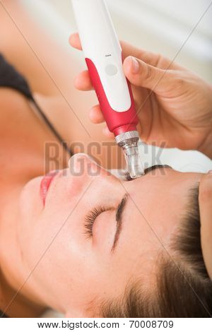 Attractive female patient receiving midro needle therapy on face as part of a anti-aging beauty treatment