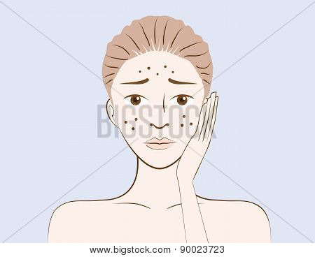 Beauty women have problem acne skin
