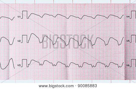 Tape Ecg With Paroxysmal Ventricular Tachycardia