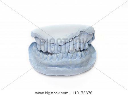 Gypsum Model Of Human Teeth
