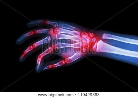 Rheumatoid Arthritis , Gouty Arthritis ( Film X-ray Hand Of Child With Arthritis At Multiple Joint )